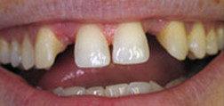 Before Dental Bridge