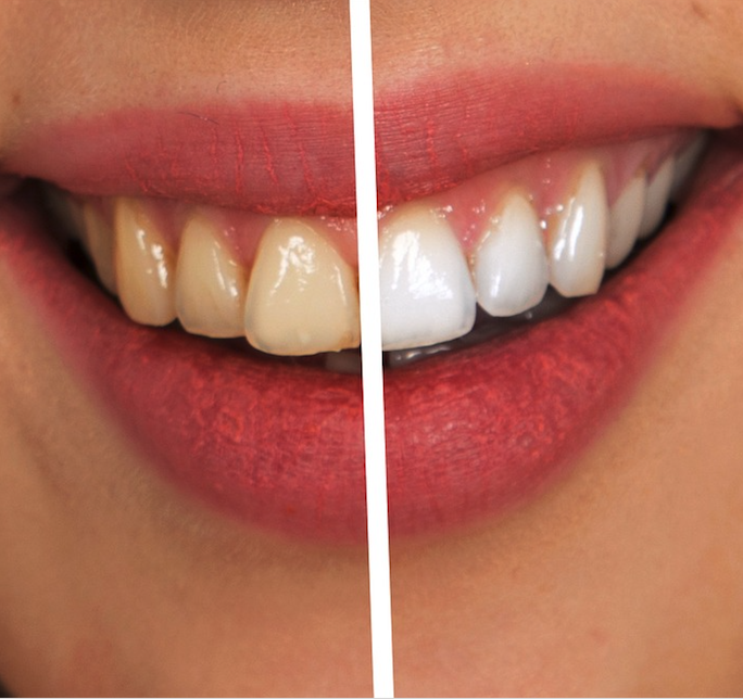 Philips Zoom Whitening Treatments
